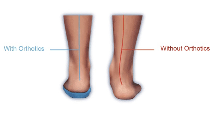 Orthotics Therapy Gilbert